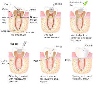 Dr. David - Dentist Bolton MA - Root Canals