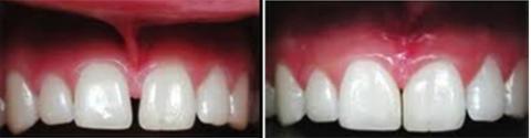 Dr. David - Bolton, MA Dentist - Frenulectomy