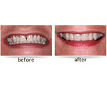 Dr. David - Bolton, MA Dentist - Veneers, Before and After