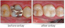 Dr. David - Bolton, MA Dentist - Before After Crown Onlay