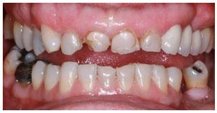 Dr. David - Bolton, MA Dentist - Bite  Misalignment