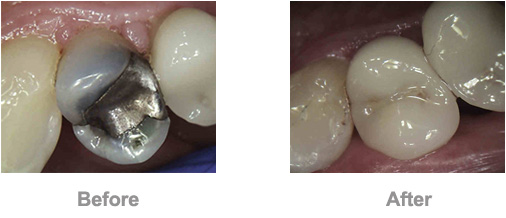 Dr. David - Bolton, MA Dentist - Crown, Before and After