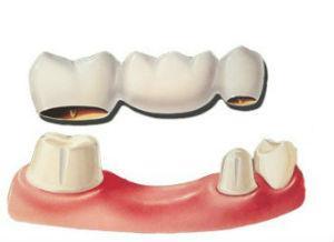 Dr. David - Bolton. MA Dentist - Dental Bridge