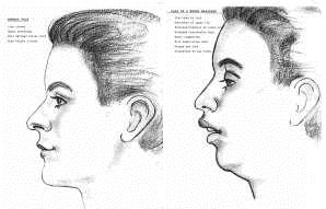 Dr. David - Bolton, MA Dentist - Facial Development