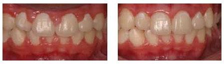 Dr. David - Bolton, MA Dentist - Gum Line