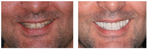 """Things You Need to Know Before You Get a """"Smile Makeover"""""""