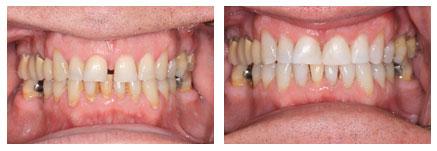 Dr. David - Bolton, MA Dentist - Teeth Discoloration