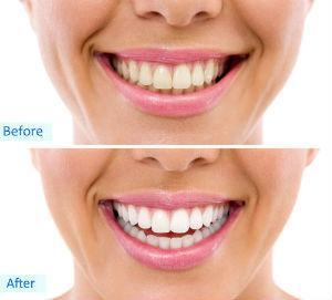 Dr. David - Bolton, MA Dentist - Teeth Whitening