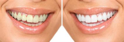 Dr. David - Bolton, MA Dentist - ZOOM! Teeth Whitening