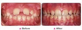 Bolton, MA Dentistry by Dr. David Myobrace Teeth Straightening Before-After