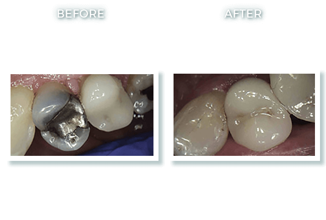 Bolton MA Dr. David Cosmetic Dentistry Results