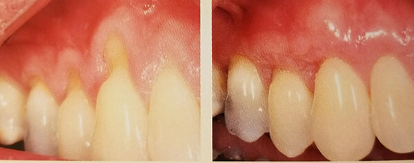 Gum recession can happen even in a healthy mouth